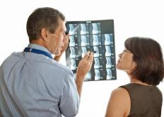 Microdiscetomy is sometimes recommended for herniated discs that don't heal on their own.