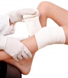 A medical professional wrapping a person's knee with a neoprene bandage.