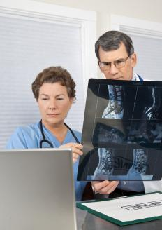 Doctors may order MRI and CT scans of the back to properly diagnose an extruded disc.