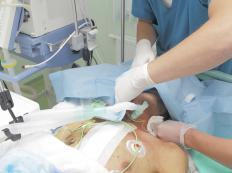 Neuromuscular blockades are frequently used in operating rooms, as well as in the ICU.