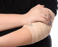 An elbow bandage should be placed below and above the elbow to create a snug, secure hold.