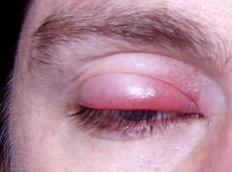 A person with a stye.