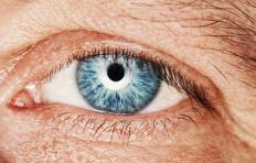 A droopy eyelid may be a sign of Horner's disease, which influences pupil size.