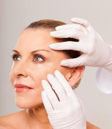 StriVectin is used to reduce wrinkles.