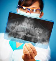 X-rays can be used to view a damaged alveolar process.