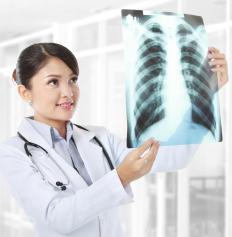 A doctor may conduct a chest x-ray to diagnose mediastinal lymphadenopathy.