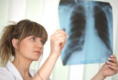 An x-ray of the lungs is needed to provide an accurate diagnosis of lung sarcoidosis.
