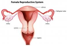 A fibroid is a non-cancerous growth that commonly develops in the uterus.