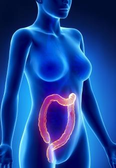 Colon distension is an enlargement of the bottom bowel that prohibits the intestines from contracting normally.