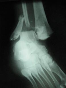 After an X-ray confirms a distal fibula fracture, the bones are repositioned as close to their natural positions as possible.