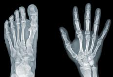 X-ray technicians use equipment such as X-ray machines to take images of bones or other internal parts of a patient's body.