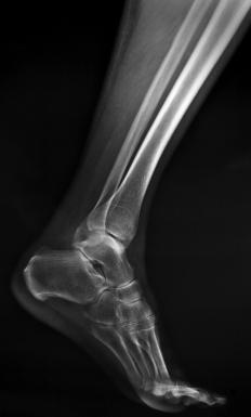 Broken leg bones can be diagnosed using an x-ray.