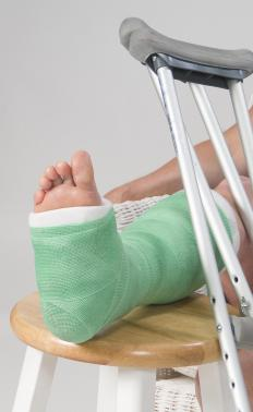 A cast may need to be worn on the foot following heel spur surgery.