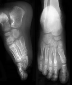 A doctor may order a foot X-ray to detect the presence of a ganglion foot cyst.