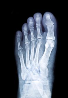 "Most pinky toe fractures can be treated with minimal, non-invasive interventions such as anti-inflammatory medications, icing, and ""buddy taping."""