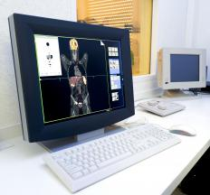 PET scanning highlights radioactive isotopes to display diseases in the body.