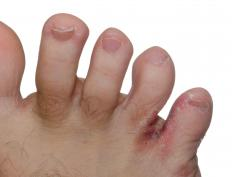 Flaky feet can be caused by athlete's foot.