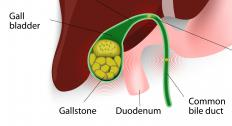 The presence of gallstones is the most common type of cholecystitis.