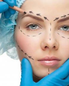 When performing a thread face lift, the plastic surgeon makes very small cuts on a patient's face, rather than incisions.