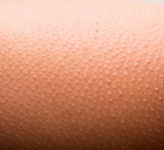 Goose bumps are an early sign of opiate withdrawal.