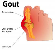 Gout may cause itchy feet at night.