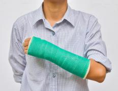 Arm swelling is commonly caused by a broken bone, which may be treated by a cast.