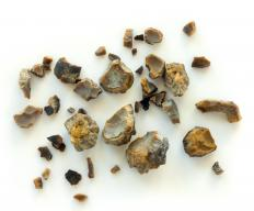 Kidney stones can cause blood clots to appear in the urine.
