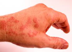An allergic reaction produces very specific symptoms, such as an itchy rash.