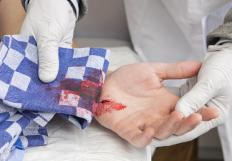 Cuts that bleed excessively may be a result of a warfarin overdose.