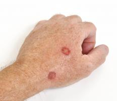 Cellulitis is a skin infection that may occur on the hands.