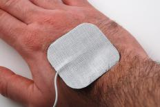TENS pads adhere to the skin like bandages and have electrodes attached.