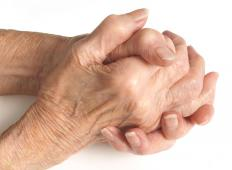 Rheumatoid nodules often form at pressure points, such as the fingers.