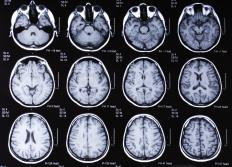 An MRI scan of the brain can be used to help determine the severity of a concussion.