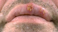 Lip lesions can be caused by the herpes virus.
