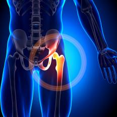 Pain, weakness, and tightness in the hip may be a sign of hip misalignment.