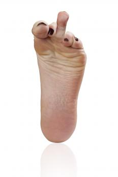 A congenital malformation may occur on the toes.