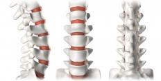 Chiropractors deal with issues relating to spinal vertebrae.