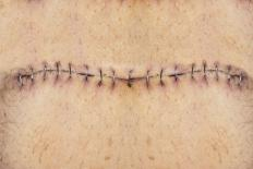 Topical preparations should not be applied directly to a hysterectomy incision.