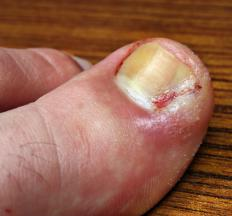 A toe that shows signs of infection should be seen my a medical professional.