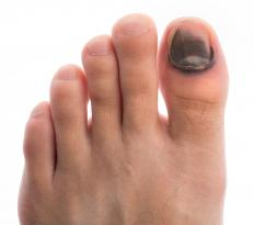 Toenail injuries may contribute to an unsteady gait.