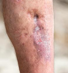 A tubular compression bandage can be used to improve circulation and speed the healing of a leg ulcer.