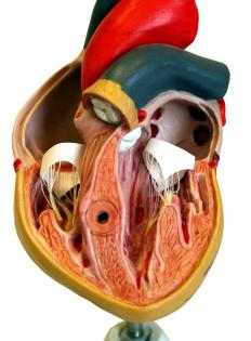 Coronary artery disease occurs when coronary arteries become obstructed with plaque.