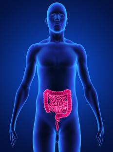 Bowel distention may occur when the intestines are functioning improperly.