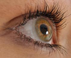 A person with heterochromia iridum might have a hazel iris in one eye but a dark brown or blue iris in the other.