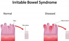 A diagnosis of irritable bowel syndrome is often made based on symptoms and not a diagnostic test.