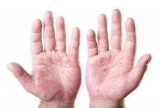 Many people with ulnar nerve pain have trouble moving their fingers.