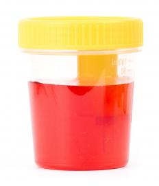 Bloody urine that occurs after a lithotripsy should be reported to a doctor immediately.