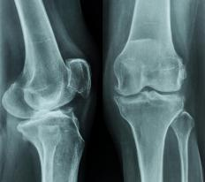X-rays of the knees may be taken in order to diagnose chondrocalcinosis.