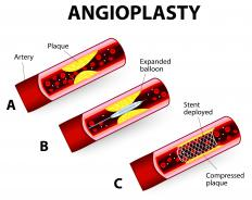 Plaque buildup in the arteries may require surgical intervention in the form of an angioplasty.