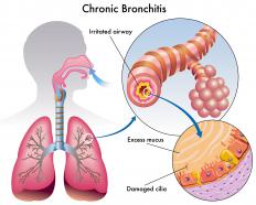 Chronic bronchitis and other conditions affect the way air is exchanged in bronchial passages.
